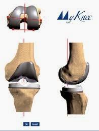 myknee texas orthopedics.jpg